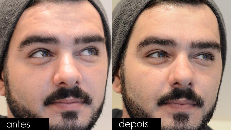 blur_facial_man_masculino_dailus_b